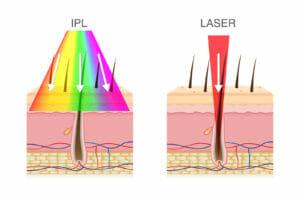 Depilazione laser vs IPL