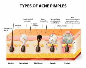 Tipi di acne - schema