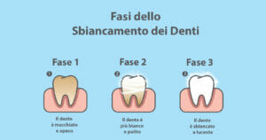 Dentifricio sbiancante infografica